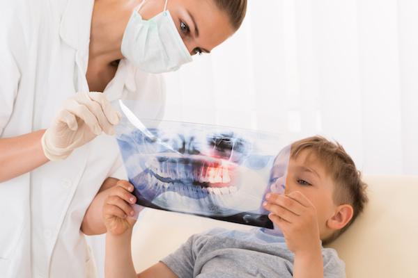 Dentist Showing Teeth Xray To Child Patient