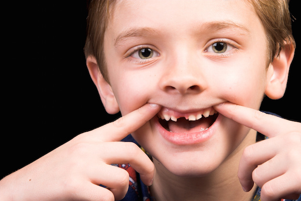 Boy with tooth missing, dark background, tooth knocked out, maitland fl pediatric dentist
