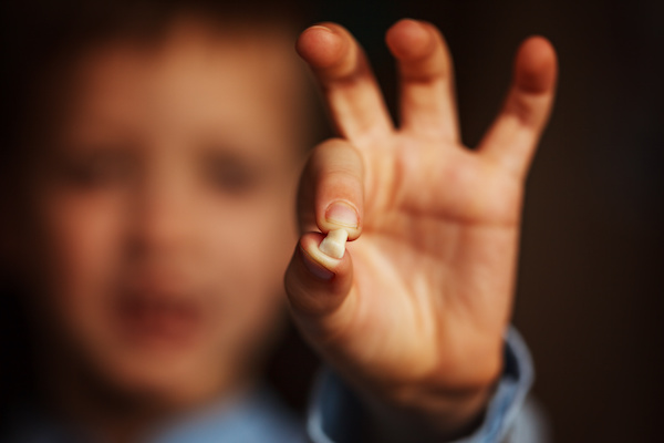 Kids Hand with one milk tooth. First tooth lost.